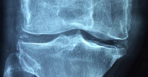 Může cvičení zabránit artritidě? Nový výzkum je nadějný